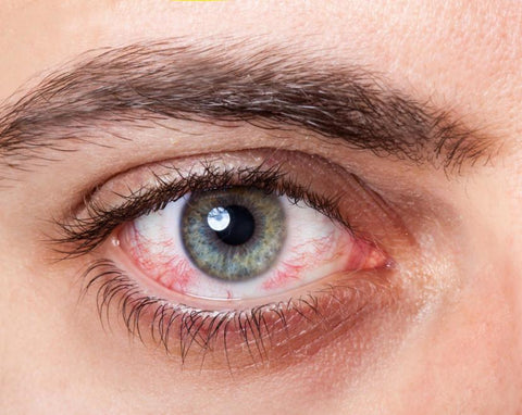conjunctivitis-blurry-vision