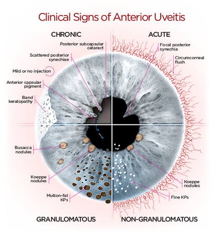 uveitis-blurry-vision
