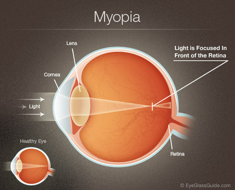 myopia-blurry-vision-in-one-eye