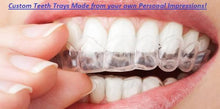 2 Custom made Trays for upper and lower arches w/ Three 9.5% Syringes - Teeth Whitening Benefit