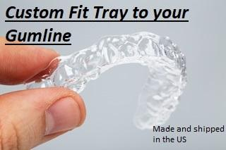 2 Custom made Trays for upper and lower arches w/ Three 35% Syringes - Teeth Whitening Benefit