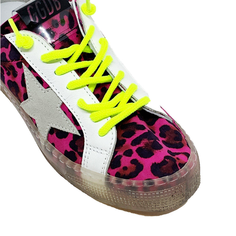 SHOES - May Hysteric Glamour Lemon Sneaker
