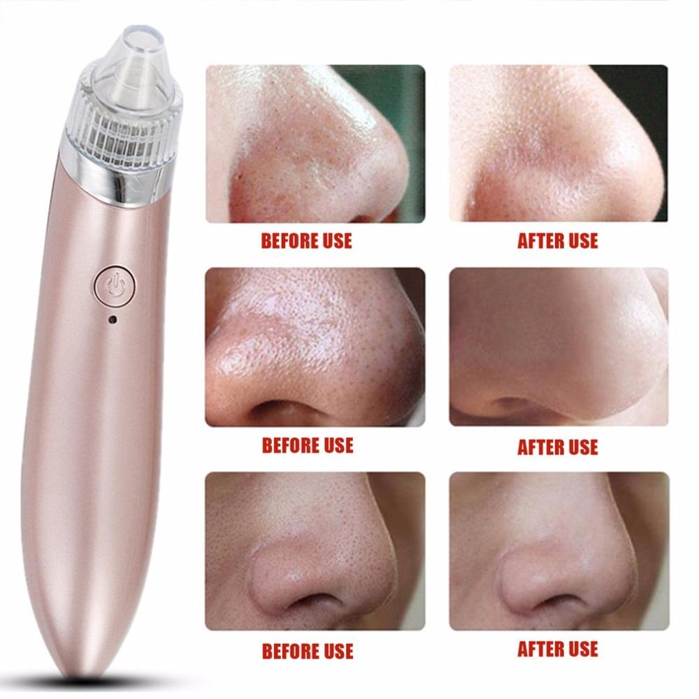 Ultrasonic Vibration Electric Blackhead Extractor Tool