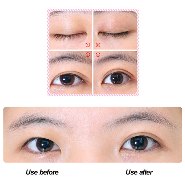 Dream Look Instant Eye Lift - 6 Months Pack