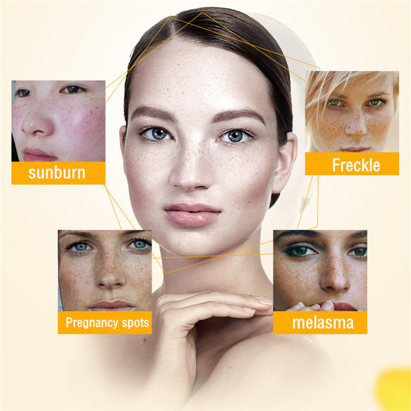 2018 Eliminate Melanin Freckle Removal Whitening Repair Facial Cream