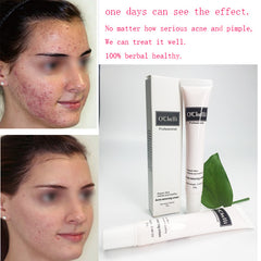 Herbal Acne Anti Pimple Removel Cream