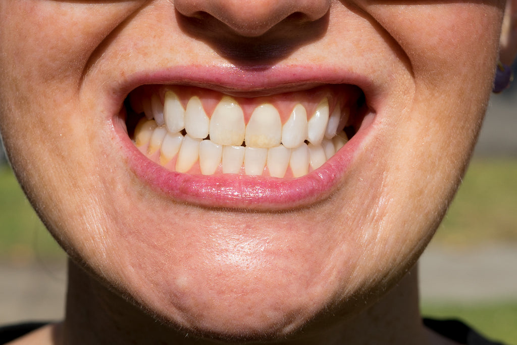 closeup of teeth before whitening