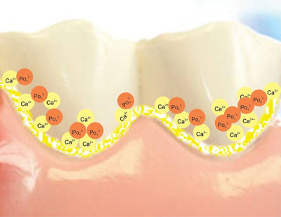 Mature dental plaque
