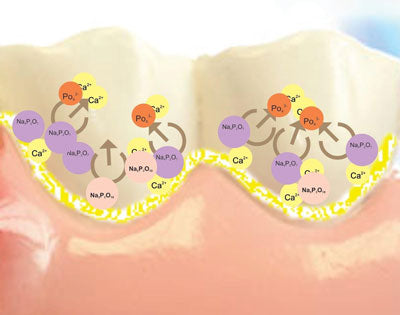 Periogen preventing dental plaque
