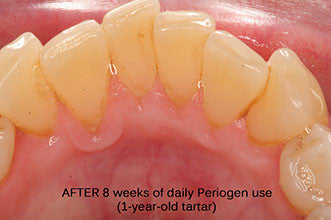 Plaque and tartar removed with Periogen