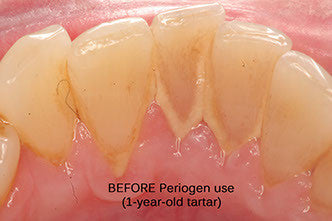 Plaque and tartar on teeth before Periogen