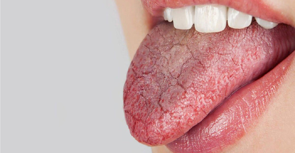 Why you Should Manage Dry Mouth