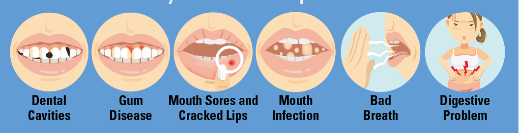 Dry mouth impacts