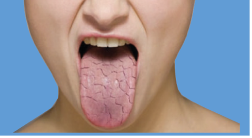 Dry mouth tongue