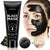 Blackhead Remover Mask, Charcoal Face Mask for All Skin Types