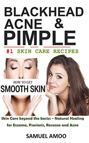 Blackheads, Acne, Pimple and Natural Skin Care Cosmetic ingredients : The secret of korean beauty and everlasting solution to smooth skin free from acne, pimple, blackhead etc. Treatment Book