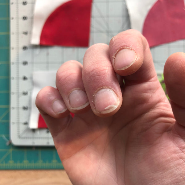Quilting injury on finger nail