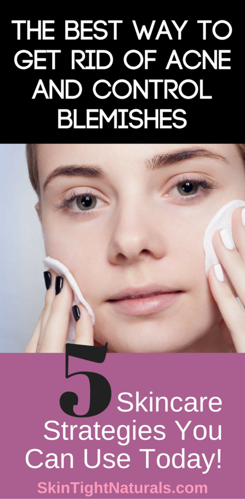 The Best Way To Get Rid Of Acne And Control Blemishes