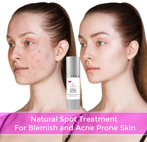 Victoria's Celebrity Acne Pimples & Blemish Clearing Solution, Natural, Hormonal, Cystic Acne, Oil Control, Anti-Aging