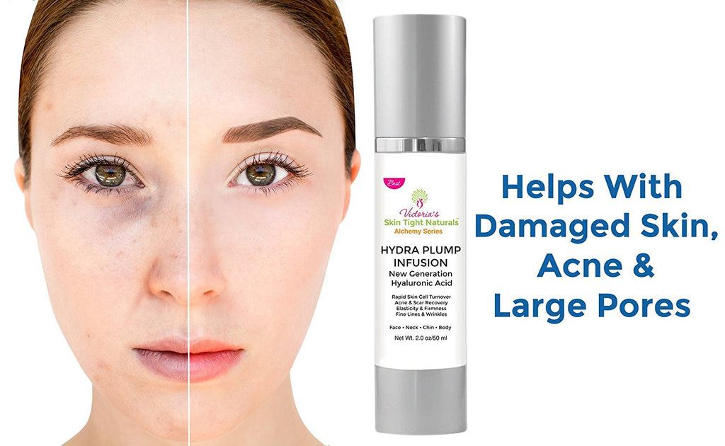 hyaluronic acid helps with acne and large pores and builds collagen