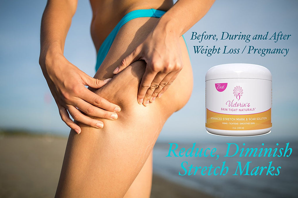 get rid of stretch marks from legs arms thighs  wieght loss and pregnancy