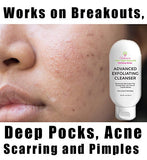 Advanced Exfoliating Cleanser For Cystic  Acne Pimples Breakouts Wrinkles and Anti-Aging