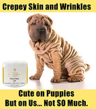 lift and erase and firm crepe skin wrinkles