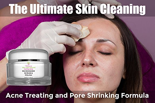 Microdermabrasion Exfoliation Skin Polish Cream For Crepe Skin