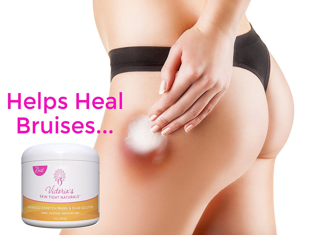 thighs legs hips and butt Best Stretch Marks Removal Cream, Prevent & Reduce Marks