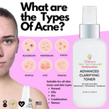skin disorders blackheads, large pores, breakouts, acne dark spots