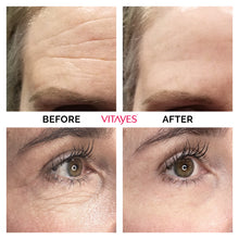 VITAYES Instant Ageback Facelift - Instantly reduce the appearance of under-eye bags-Cosmetics-Vitayes USA - Reseller Store-Vitayes USA - Reseller Store