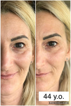 (NEW) VITAYES Instant Ageback Facelift - Instantly Reduce the Appearance of Under-Eye Bags (7 ml Tube)-Cosmetics-Vitayes USA - Reseller Store-Vitayes USA - Reseller Store
