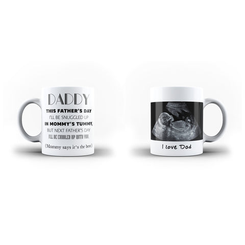 Personalised Baby Scan Photo Daddy Father's Day Gift Mug - Personalised Mug - Ai Printing