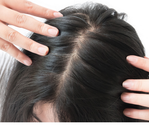 thinning hair line saw palmetto