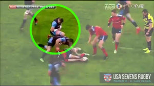 Rugby Player Pops Shoulder Back In Mid Play