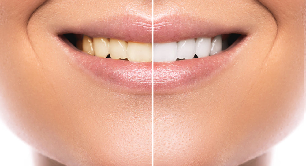 The Pros and Cons of Different Teeth Whitening Procedures