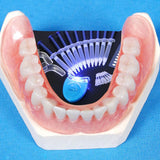 Teeth Whitening 44% Peroxide Dental Bleaching System - Shopichic