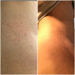 psoriasis before and after magicmuk