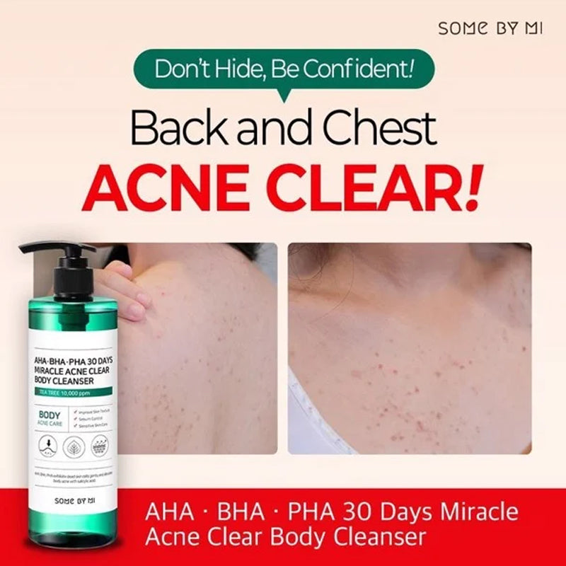 SOME BY MI Miracle Acne Clear Body Cleanser 30 Days