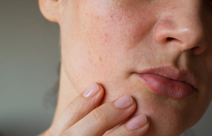 How to manage sensitive skin