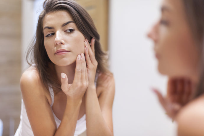 Causes of acne and natural ways to treat it