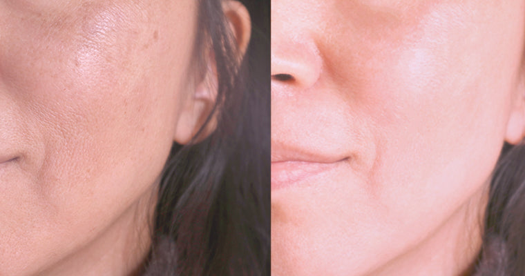 Before and after photos of the benefit of Vitamin C on the skin