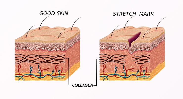 Diagram of stretch marks and how they are formed