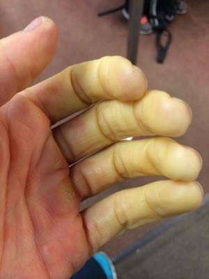 Raynaud's Awareness