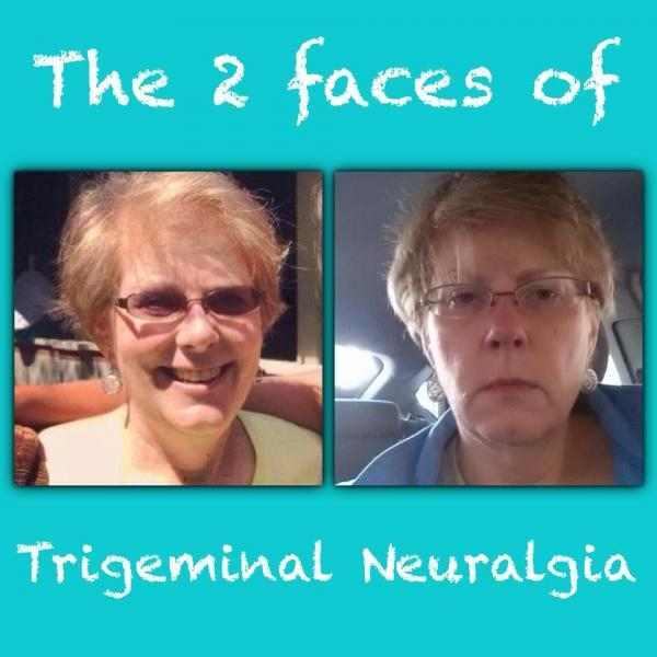 Trigeminal Neuralgia Research and Awareness