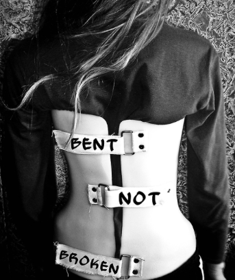 Bent not broken—Scoliosis Research Fund