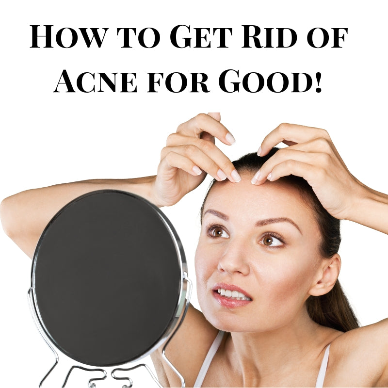How to Get Rid of Acne Quickly & For Good: A Complete List of Tips & Hacks
