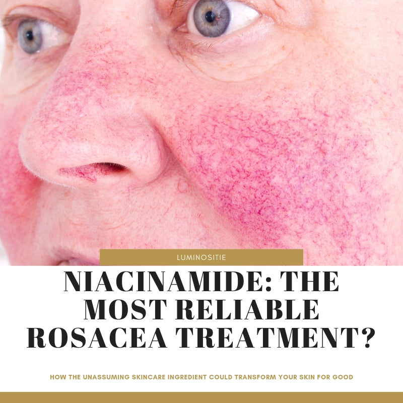 Niacinamide Cream and Rosacea: The Best Way to Get Pure & Healthy Skin