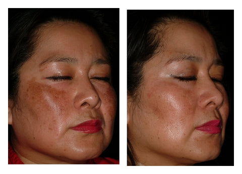 niacinamide before and after