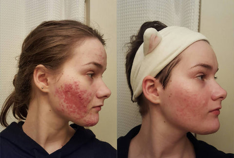 before and after niacinamide serum